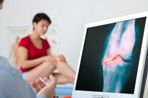 Upadacitinib v léčbě revmatoidní artritidy