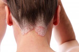 Komorbidity u psoriatické artritidy: systematický přehled a metaanalýza