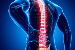 Možnosti moderní terapie axiálních spondyloartritid