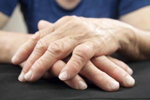 Klíčové komorbidity u pacientů s revmatoidní artritidou