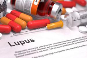 Aktivita lupusu ovlivňuje úmrtnost