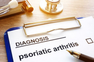 Psoriatická artritida bez psoriázy – podcast
