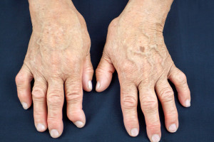 Prediktory revmatoidní artritidy